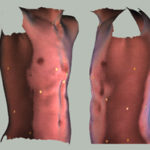 Nonoperative correction of pectus carinatum with orthotic bracing
