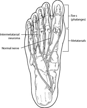 foot-neuroma