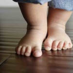 Improving foot posture, balance in CMT may aid ankle stability