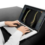 SpineEOS 3D surgical planning software approved in Europe