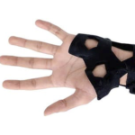 Could the 3D-printed cast put plaster to pasture?
