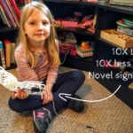 Father builds novel arm brace to stimulate daughter's rehab