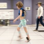 Gait analysis helps children with cerebral palsy keep pace