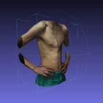 Dynamic bracing of pectus carinatum: a quantitative analysis
