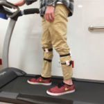 Wearable sensors characterize CP gait