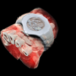 First 3D colour x-ray of a human using CERN technology