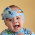 Earlier helmet therapy yields better results for infants with skull flattening