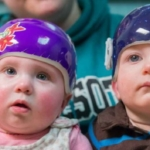New guidelines review evidence on PT, helmets for positional plagiocephaly