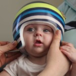 What's the best treatment for positional plagiocephaly in infants?