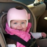 New research gives parents a heads-up (on plagiocephaly)