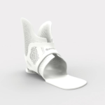3D printed ankle-foot orthotics for functionality and comfort