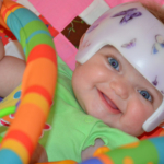 Nonsynostotic deformational plagiocephaly: Understand, screen, and intervene